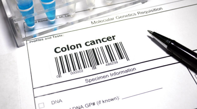 colon cancer
