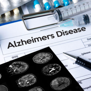 brain scan Alzheimers disease