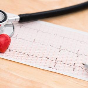 EGC heart monitor printout