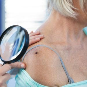 examining mole